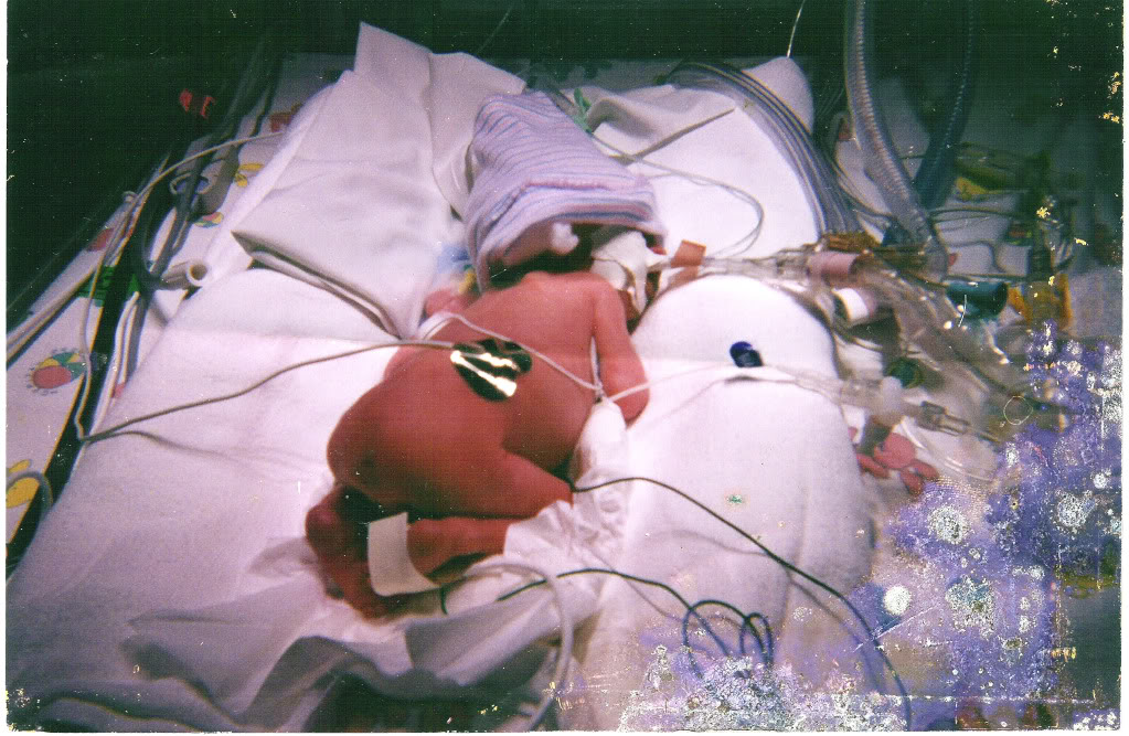 Tiny Premature Baby born early from HELLP Syndrome
