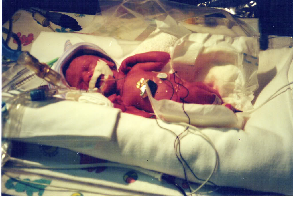 Premature baby in NICU due to pregnancy complication HELLP