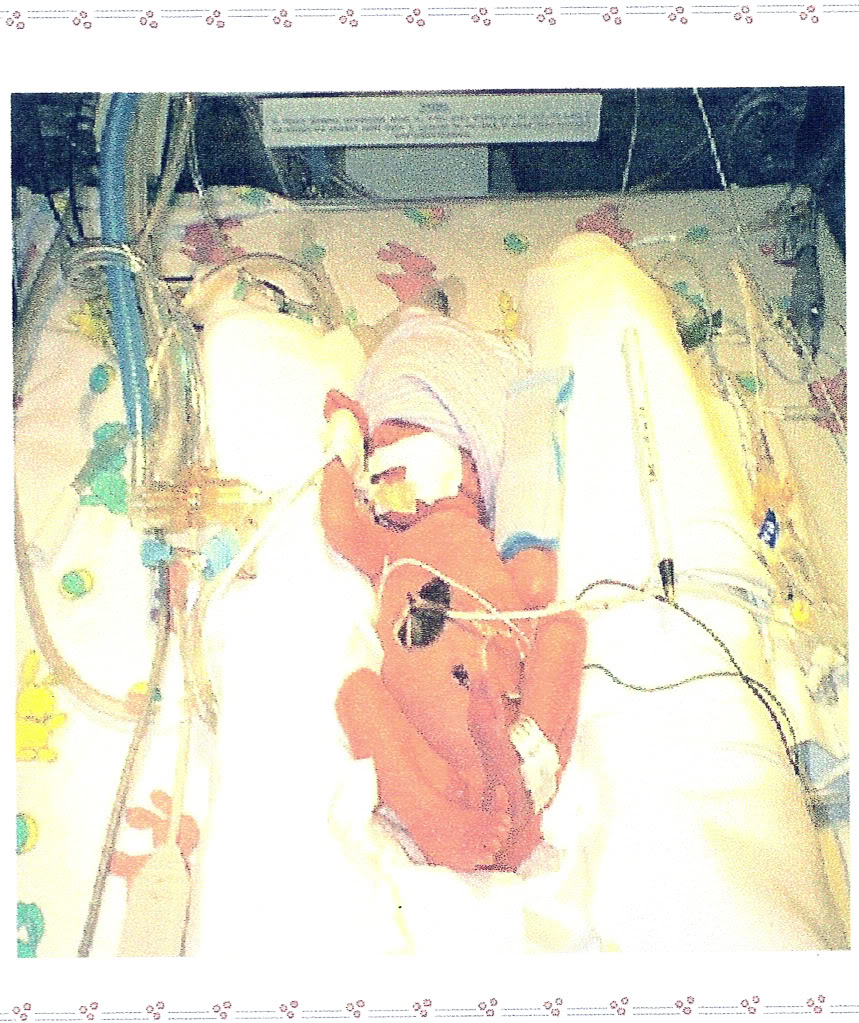NICU baby born early from pregnancy complications HELLP