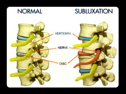 Comparison of Normal spine and damaged subluxation